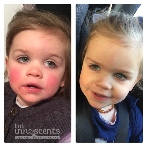 Little Innoscents Intensive Soothing Cream Eczema Results